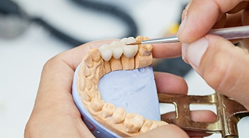 Dentist holding model of dental bridge