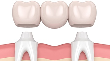 Dental bridge graphic showing placement procedure