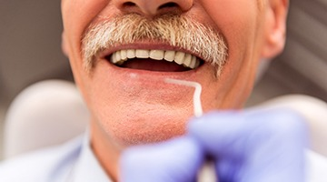 Man with dental bridge smiling
