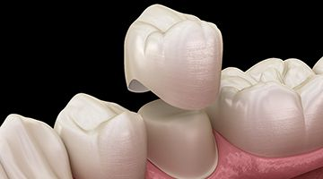 A digital image of the bottom row of teeth and a dental crown being placed over a tooth that has been prepped