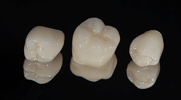 Three tooth-colored dental crowns, each custom-made to match the color, size, and shape of the natural tooth