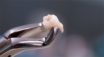 A pair of dental forceps holding a tooth.