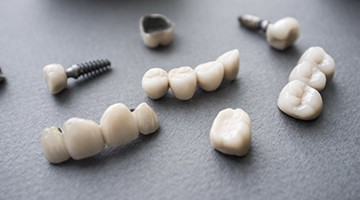 A series of dental restorations and implants.