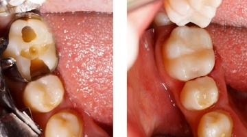 A tooth before and after receiving tooth-colored fillings.